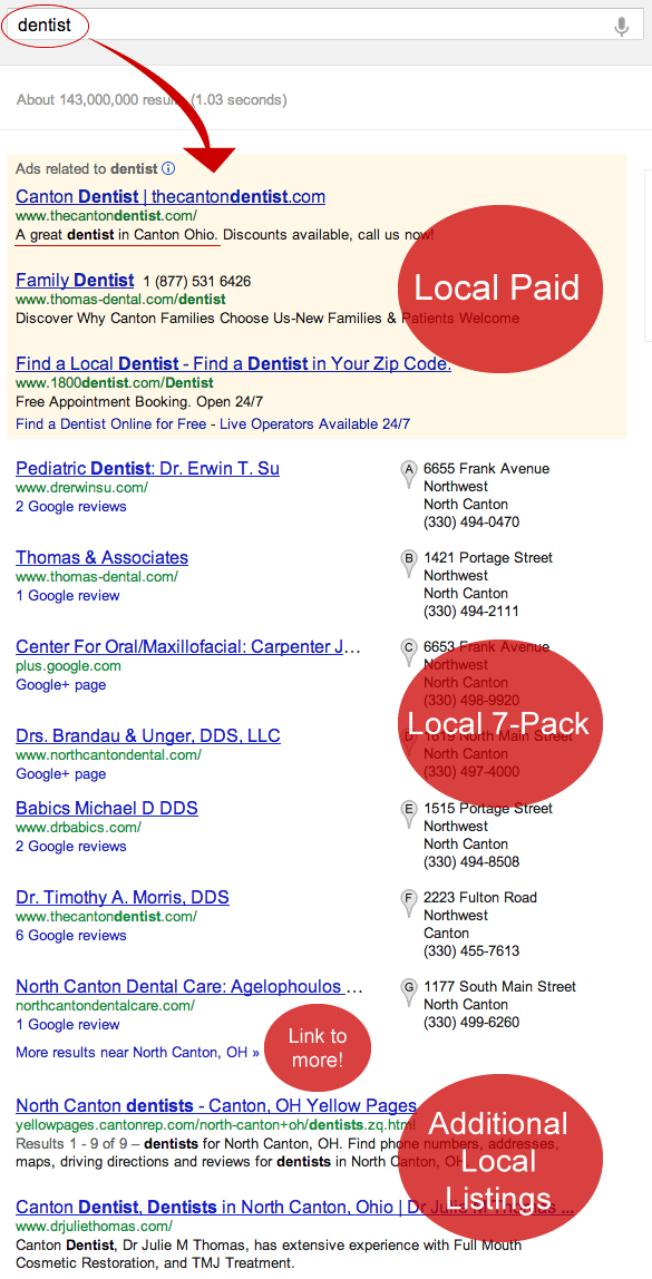 local-Google-listings